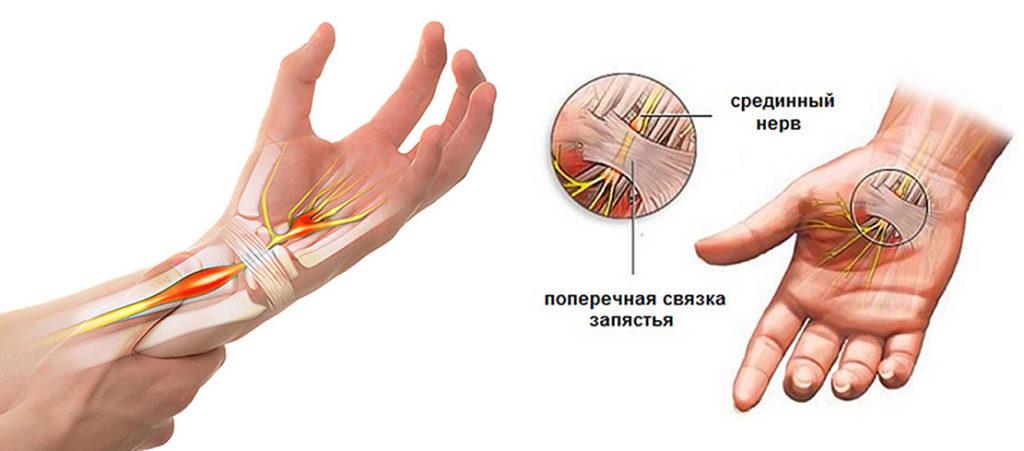 0214 1 1024x451 - Упражнения при туннельном синдроме запястья кисти рук: практика доктора Маматова