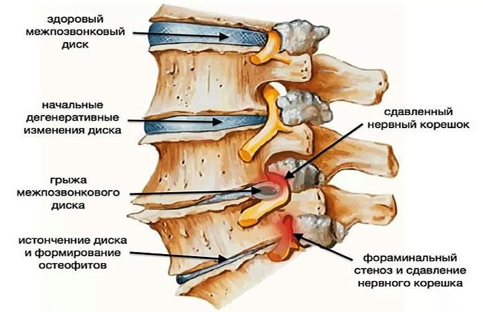 040 2 - Тест на грыжу позвоночника: кому грозят проблемы с грыжей в спине объясняет Алексей Маматов