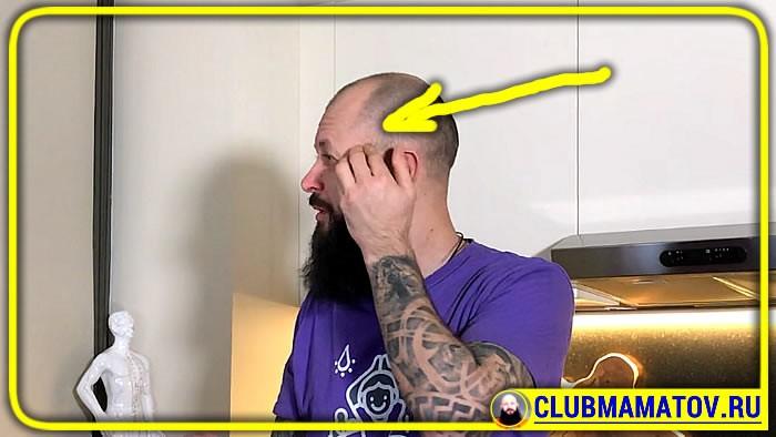 041 3 - Если голова болит, что делать в домашних условиях, объясняет доктор Маматов