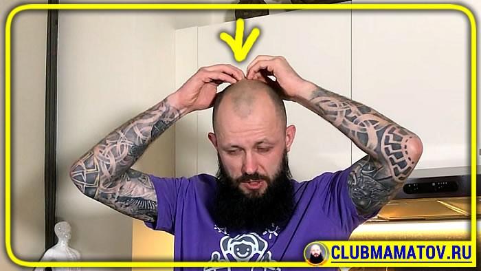 041 4 - Если голова болит, что делать в домашних условиях, объясняет доктор Маматов