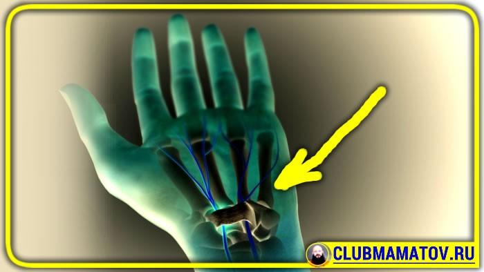 043 - Упражнения при туннельном синдроме запястья кисти рук: практика доктора Маматова
