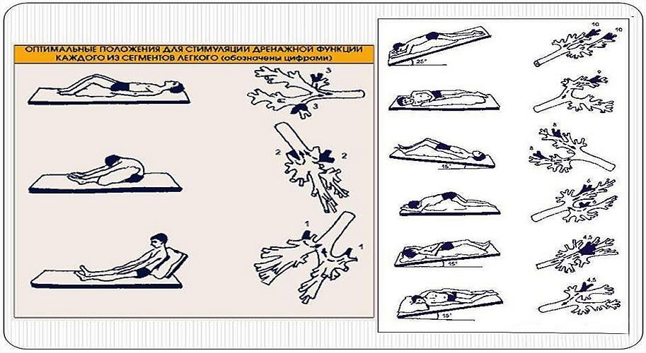 0277 3 - Как выводить слизь из легких без аппарата ИВЛ: практически народное средство из СССР, о котором забыли