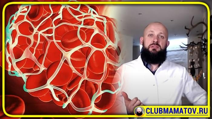 047 22 - Откуда берутся тромбы и атеросклероз сосудов. Доктор объясняет простым языком
